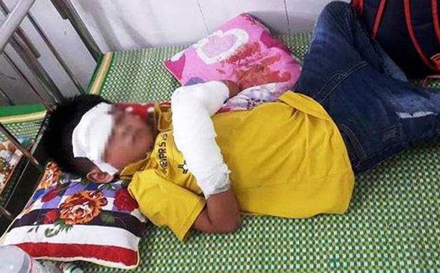 Điện thoại phát nổ lúc đang sạc pin, cháu bé 7 tuổi bị dập nát tay